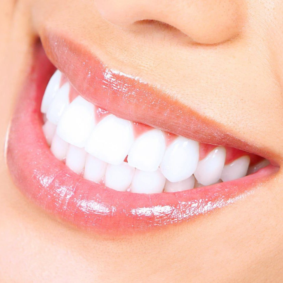 Teeth Whitening at Avanti